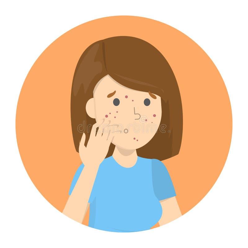 Droevige vrouw met acne op het gezicht vector illustratie