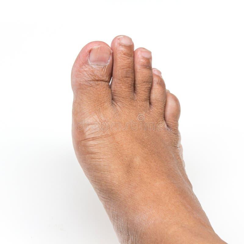 Droge voeten stock afbeelding