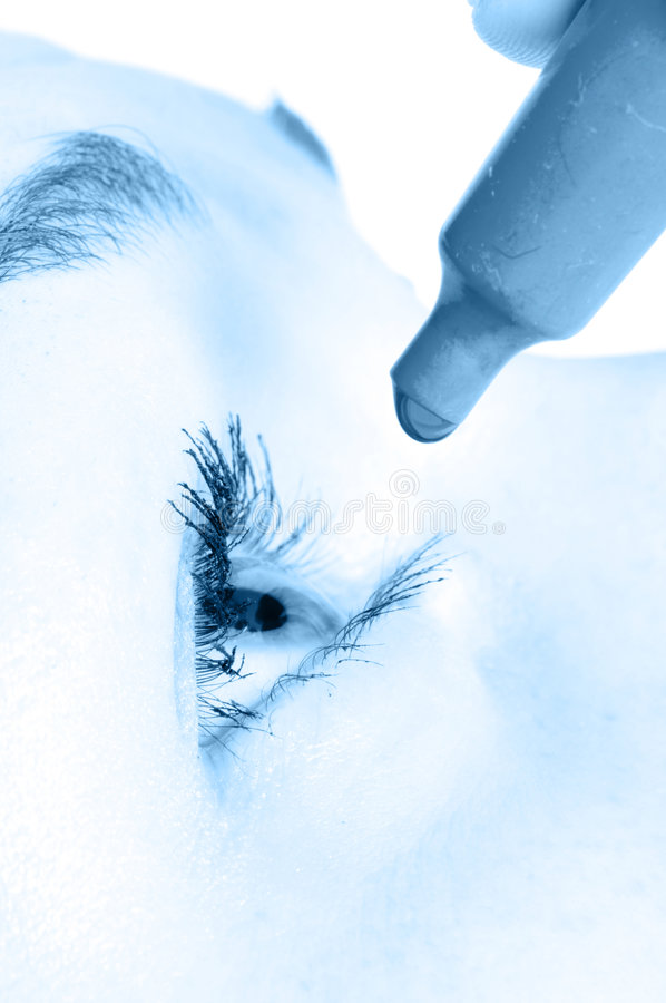 Drops for eyes. / allergy, applying royalty free stock photo
