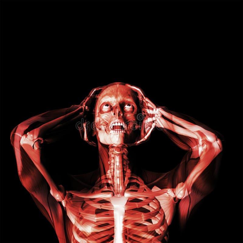 Druck-Kopfschmerzen stock abbildung