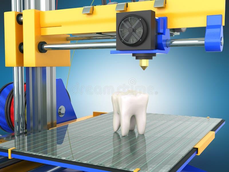 Drucker 3d des Zahnes 3d übertragen auf blauem Hintergrund vektor abbildung