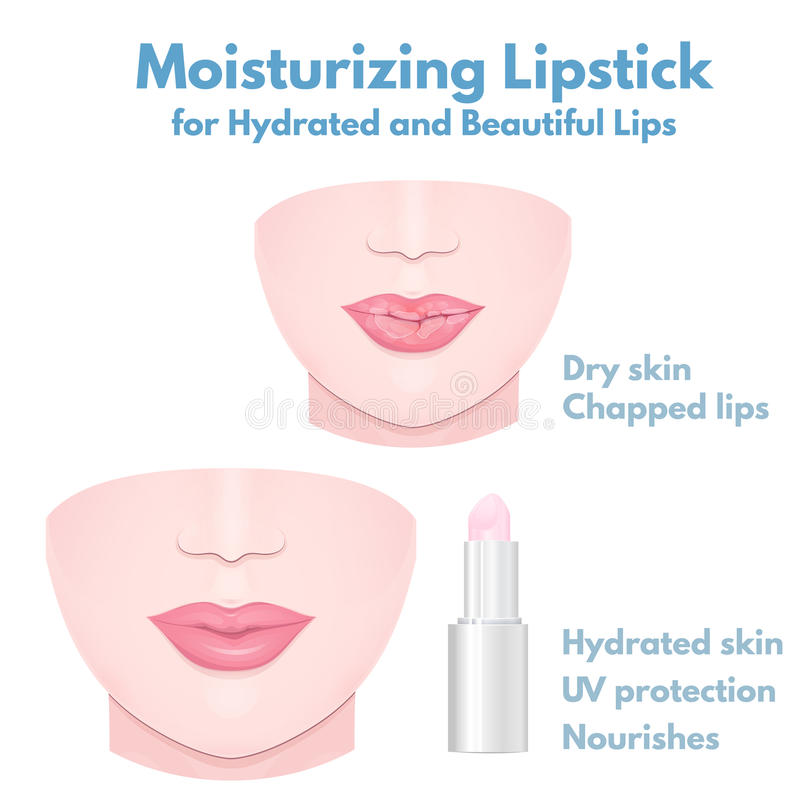 Dry cracked lips. Sore lips close-up, chapped lips in winter and hydrating balm vector illustration