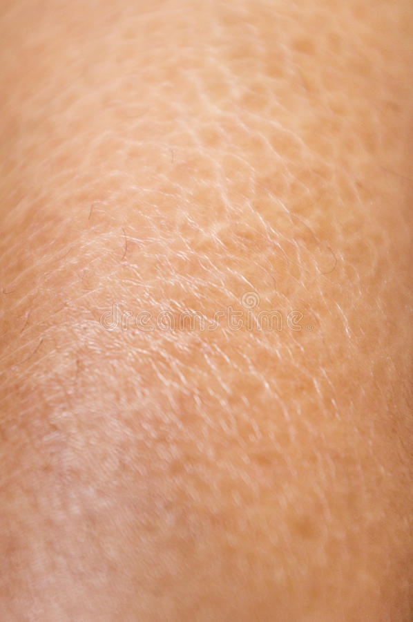 Download Dry And Cracked Skin Textures Close Up Stock Photo - Image: 22629560