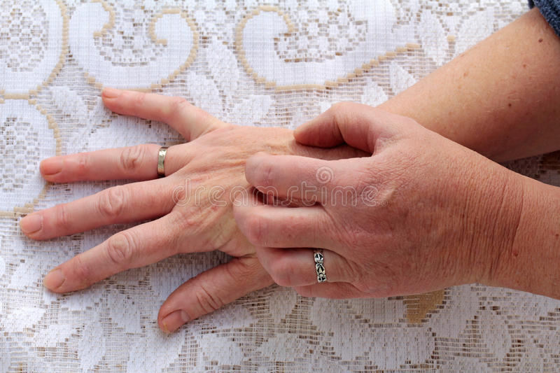 Dry itchy skin. Many older people have a dry itchy skin stock photography