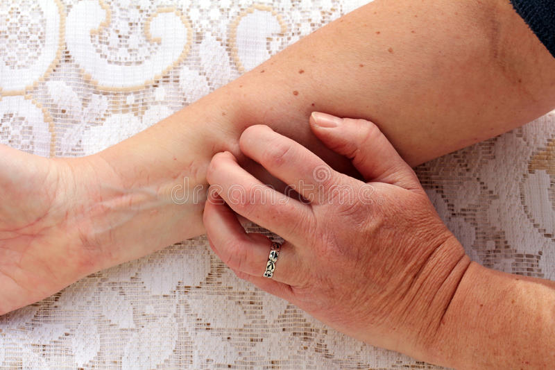 Dry itchy skin. Many older people have a dry itchy skin stock image