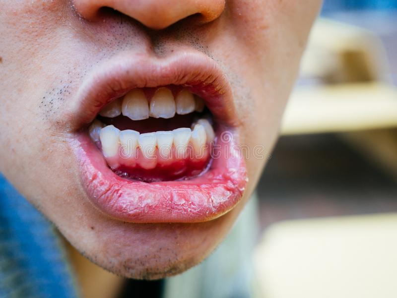 Dry mouth and bad teeth of a man on cold day close up. People healthcare checking stock photography