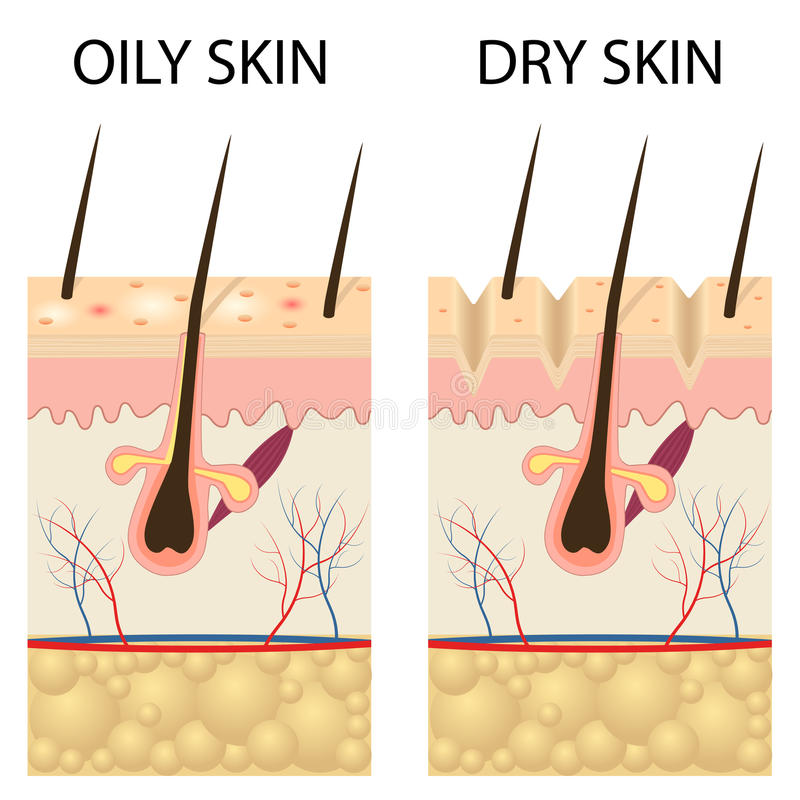 Dry and oily skin. Human Skin types and conditions. Dry and oily. A diagrammatic sectional view of the skin royalty free illustration