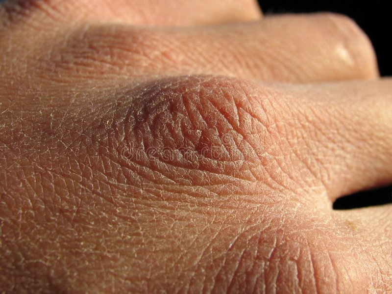 Dry skin royalty free stock images