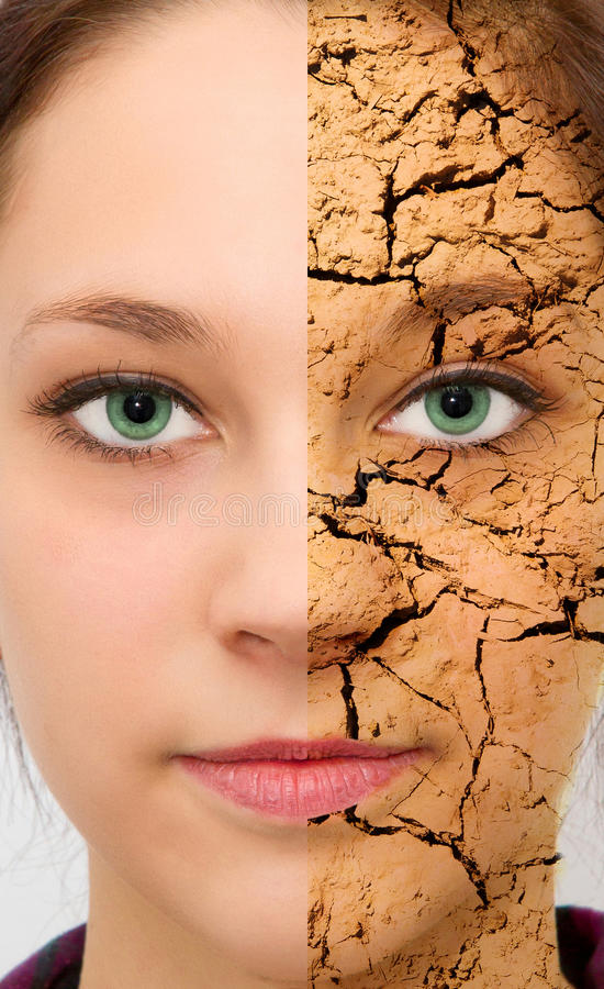 Dry Skin. Excagurated dry skin effect on one half of the face of a beautiful woman stock photo