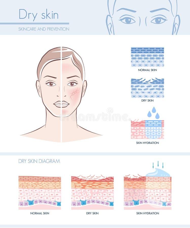 Free Dry Skin Stock Photos - 78505573