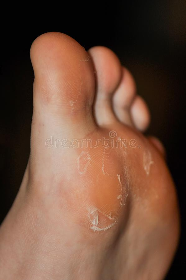 Dry skin of the feet. Dry skin of the feet with dark background. Foot Treatment royalty free stock images