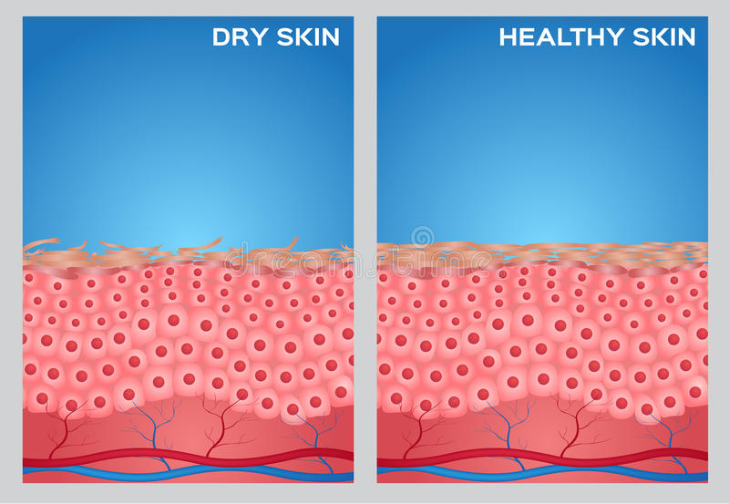 Dry skin, healthy skin texture ,. On blue background vector illustration
