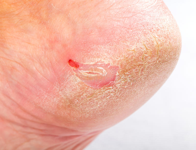 Dry skin on heel. Close up photo of a person with dry skin on heel stock photos