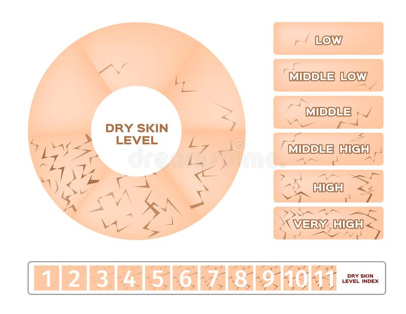 Dry skin level infographic. On white background royalty free illustration