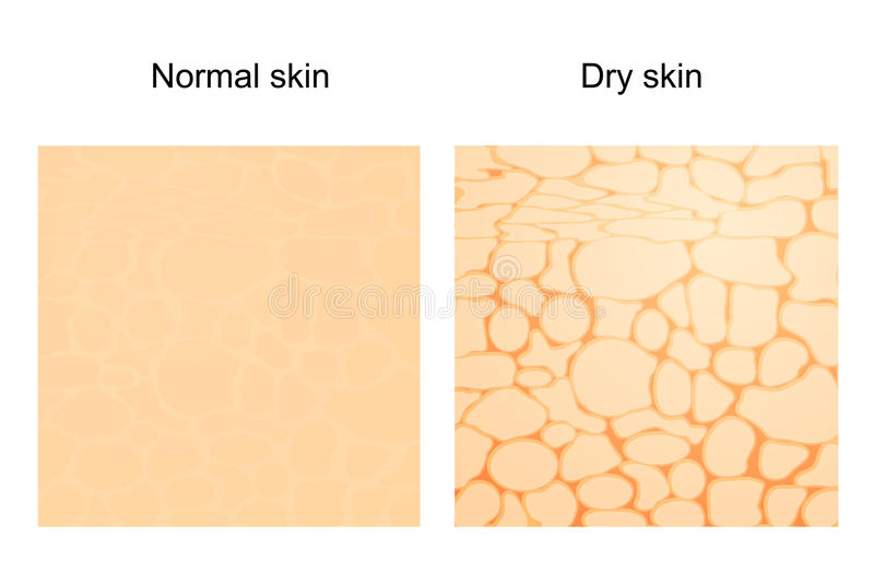 Dry skin and normal skin. The difference between dry skin and normal skin. Vector background. skincare royalty free illustration