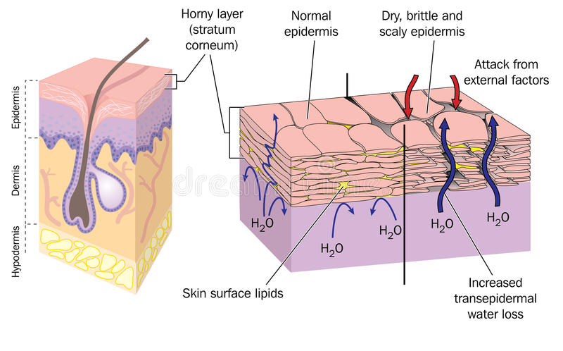 Dry skin. Section through skin showing normal epidermis and skin surface structure resulting in water loss and dry, brittle, scaly skin. Created in Adobe royalty free illustration
