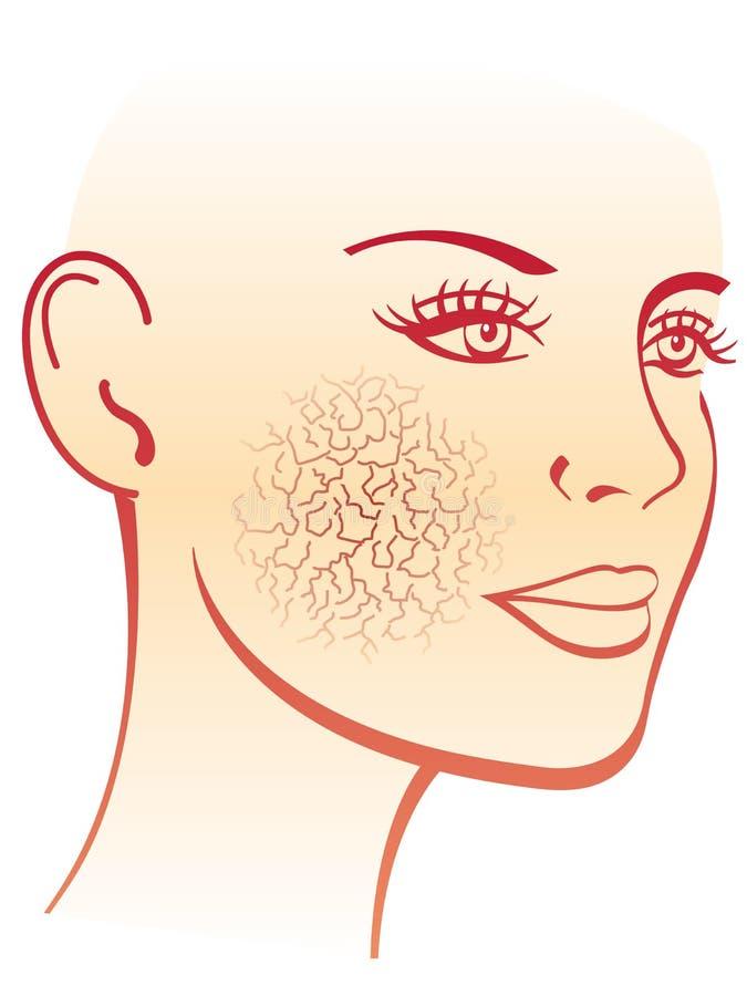 Dry skin. Simbolic medical illustration of the effects of dry skin royalty free illustration