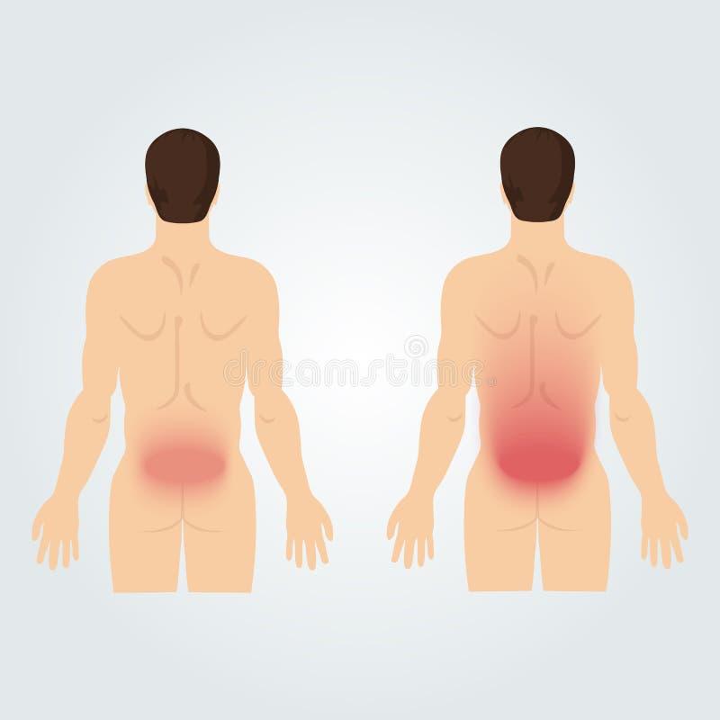 Duas silhuetas dos homens da parte traseira: dor nas costas aumentada ilustração do vetor