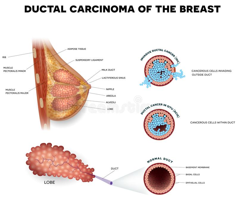 Ductal kanker vector illustratie