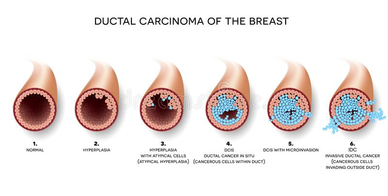 Ductal Krebs der Brust lizenzfreie abbildung