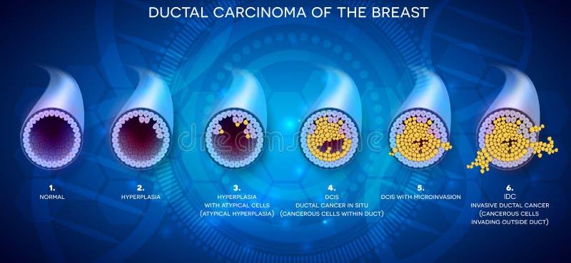 Ductal Krebsgeschwürentwicklung stock abbildung