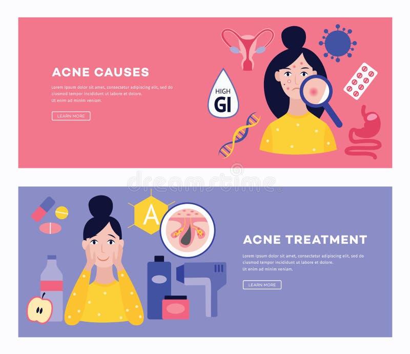 Due insegne con le cause ed i metodi di trattamento dell'illustrazione piana di vettore dell'acne illustrazione vettoriale