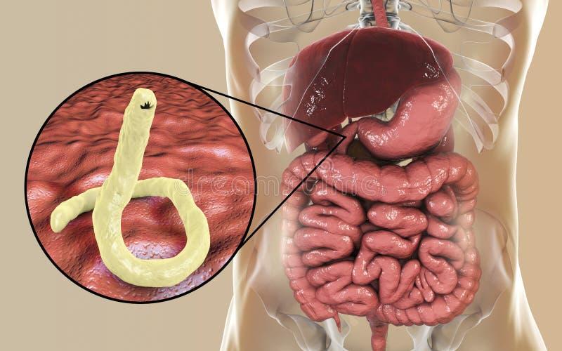 Duodenale parasítico de Ancylosoma do ancilóstomo no duodeno humano ilustração do vetor