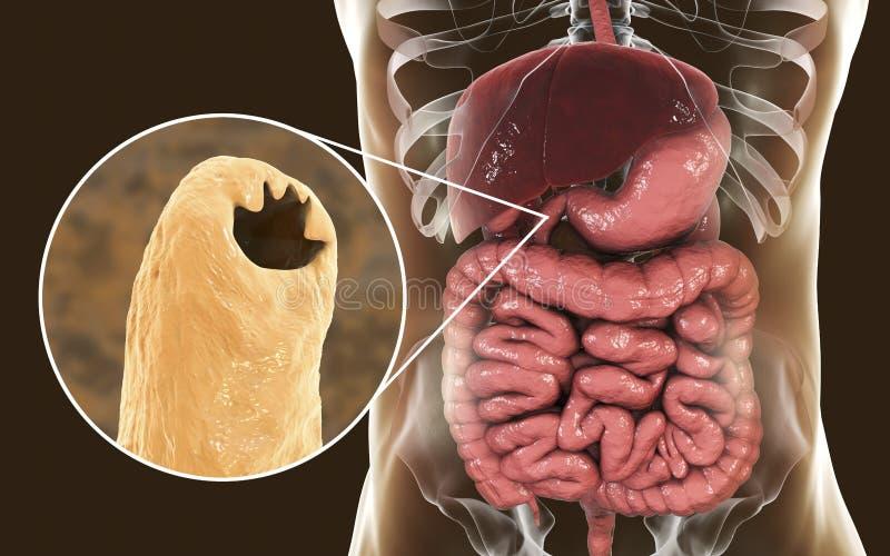 Duodenale parasítico de Ancylosoma do ancilóstomo no duodeno humano ilustração royalty free
