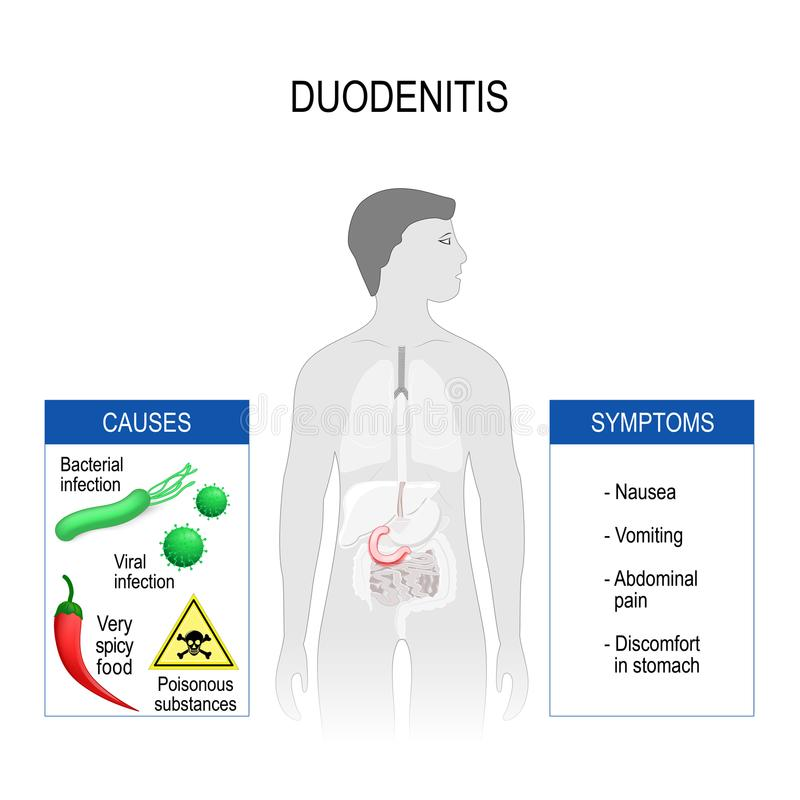 Duodenitis. Symptoms and causes. vector illustration