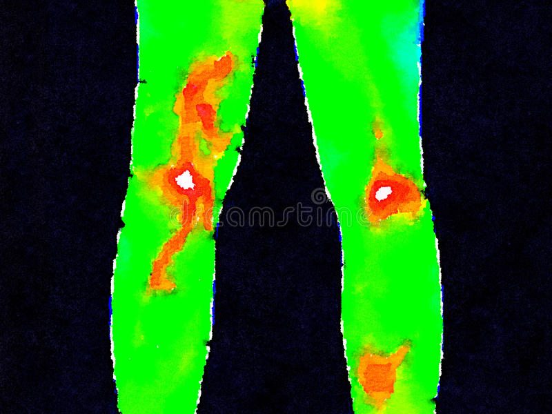 DW Legs thermography royalty free stock photography