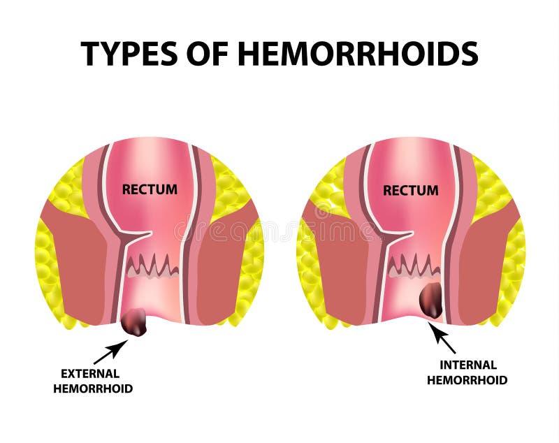 Dwa typ hemoroidy są zewnętrznie i wewnętrzni Odbytnicy struktura jelita dwukropek Wewnętrzny i zewnętrznie hemoroidalny guzek ilustracja wektor