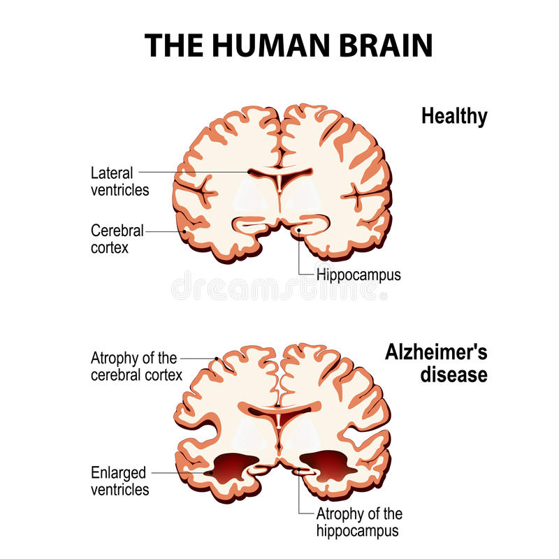 Dwarsdoorsnede van de menselijke hersenen met de ziekte van Alzheimer ` s royalty-vrije illustratie