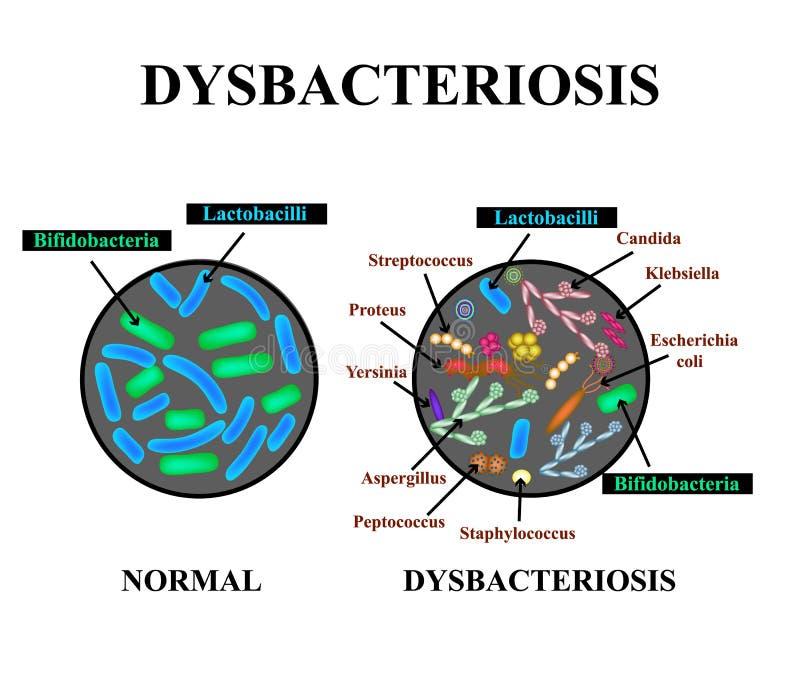 Dysbacteriosis肚腑 乳酸杆菌属, Bifidobacteria,链球菌,葡萄球菌, E 杆菌, Aspergyllus蘑菇,假丝酵母 皇族释放例证