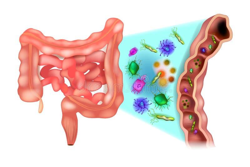 Dysbacteriosis van de darm - Dubbelpuntbacteriën vector illustratie