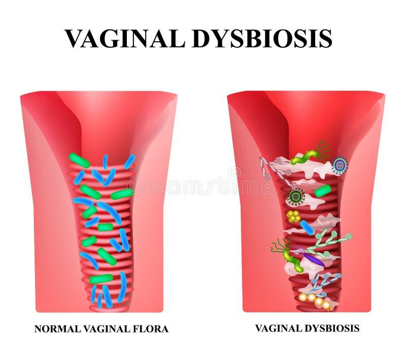 Dysbiosis vaginal Dysbacteriosis de la vagina Candidiasis del Vaginitis Lactobacilo, bifidobacteria Flora patógena de las bacteri libre illustration
