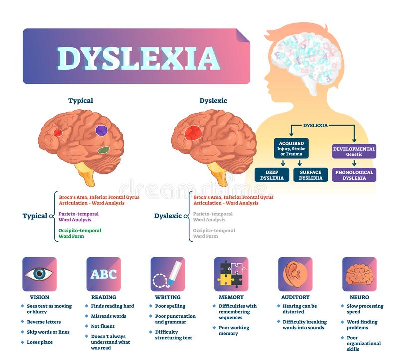 Dyslexia vector illustration. Labeled medical brain illness problem scheme. Compared normal and brain with disease. Vision, reading, writing, memory auditory stock illustration