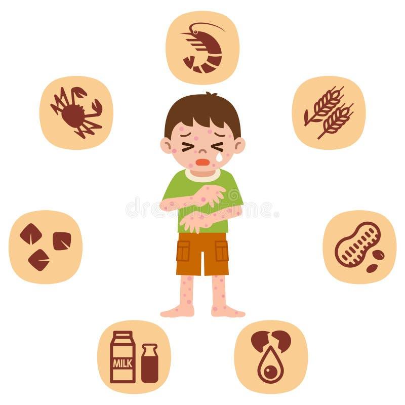 Dzieci które cierpią od alergii ilustracji