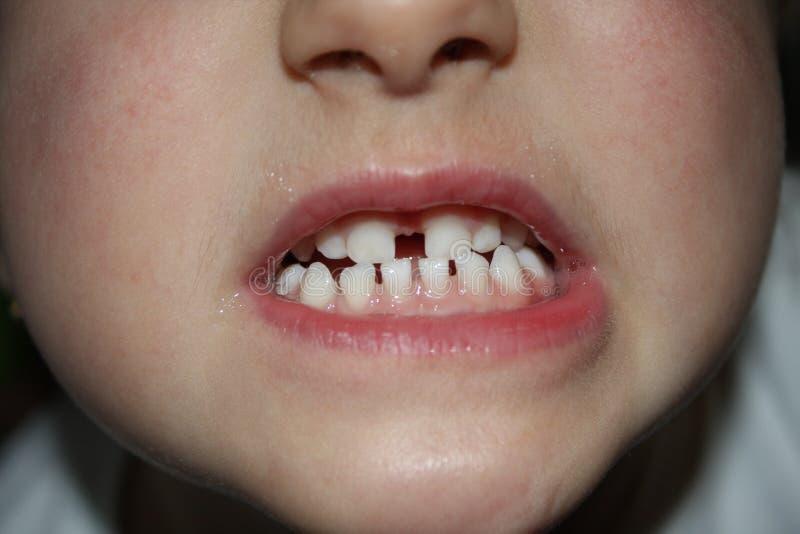 Dzieciaków teeths - zbliżenia spojrzenie obraz stock