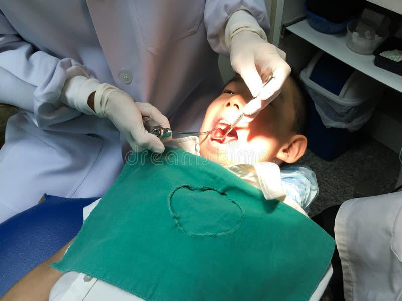 Dzieciak ma usta checkup w stomatologicznej klinice fotografia stock