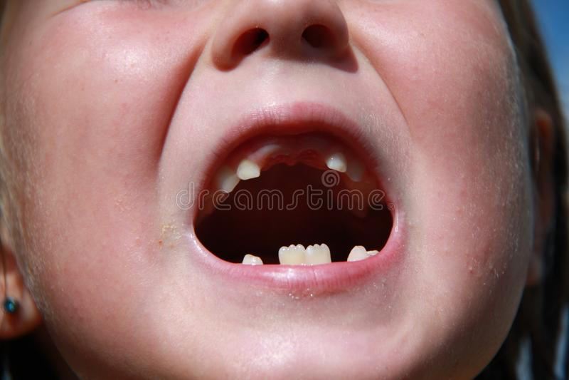 Dziecko gubi dojnych zęby obraz royalty free