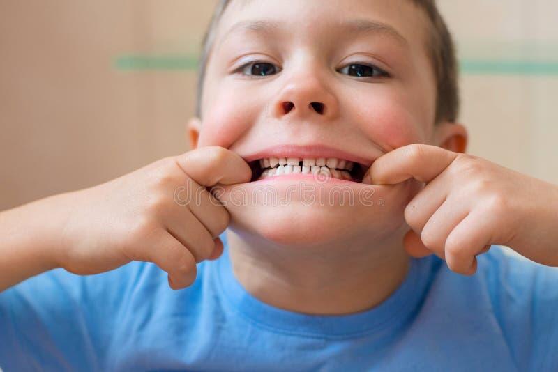 Dziecko rozciąga jej usta i pokazuje ona zęby fotografia royalty free