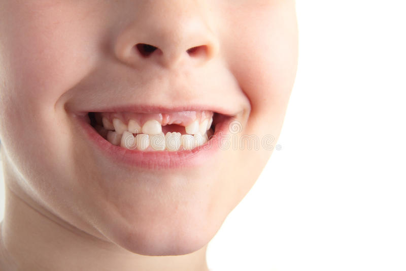 dziecko zęby fotografia stock
