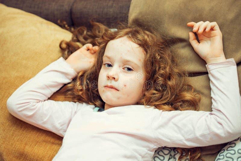 Dziecko z Chickenpox wirusem zdjęcie stock