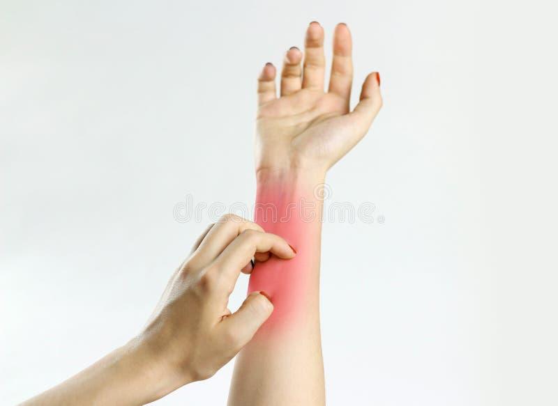 Dziewczyna świerzbieć w ręce Itchy ręka zbliżenie zdjęcie stock