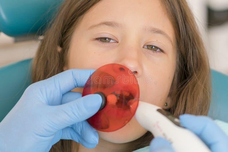 Dziewczyna dostaje stomatologicznego podsadzkowego traktowanie przy molarnym z?bem z pozafioletow? technologi? Wizerunek ma?a dzi fotografia stock