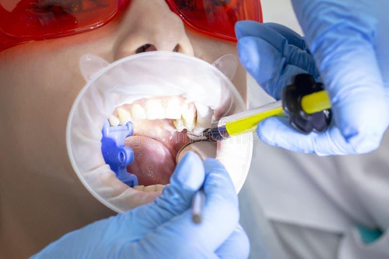 Dziewczyna na egzaminie przy dentysty traktowaniem próchnicowy ząb lekarka używa lustro na rękojeści i boron maszynie obrazy royalty free