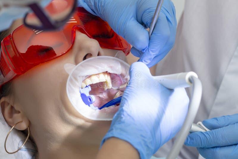 Dziewczyna przy przyjęciem przy dentysty traktowaniem próchnicowy ząb na górze twój ząb próchnic zdjęcia stock