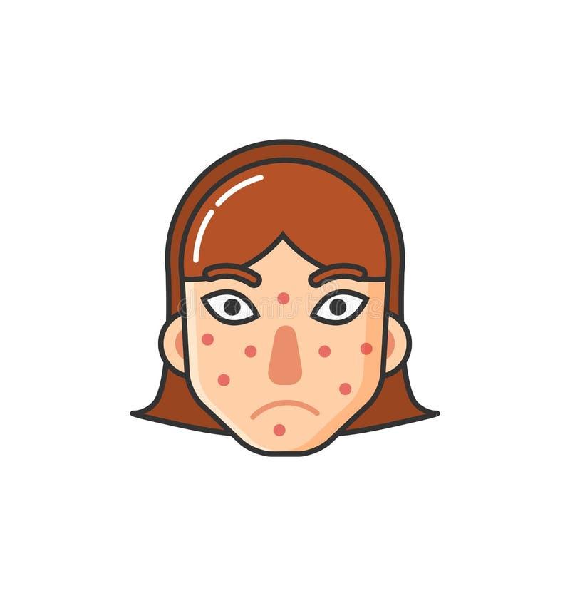 Dziewczyna z wysypką na twarzy, skóra problem chorobą royalty ilustracja