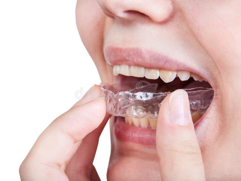 Dziewczyna załatwia aligner dla ortodontycznej korekci zdjęcie stock