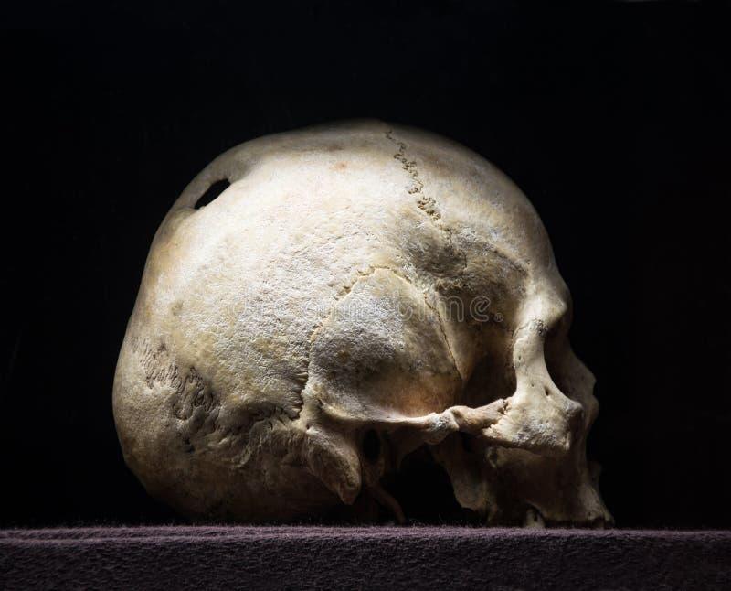 Dziura w czaszce obrazy stock